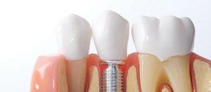 Fort Lee-dental-implant-Best_Dentist_ABS
