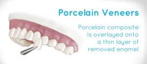 porcelain-veneer-ABS-Fort-Lee-Dental-Office_website